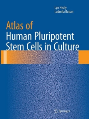Atlas of Human Pluripotent Stem Cells in Culture