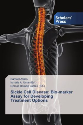Sickle Cell Disease: Bio-marker Assay for Developing Treatment Options